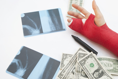 Bandaged Arm, X-Rays, Money And Pen